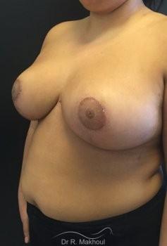 Hypertrophie mammaire vue de quart apres