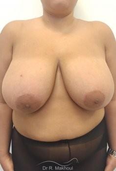 Hypertrophie mammaire vue de face avant