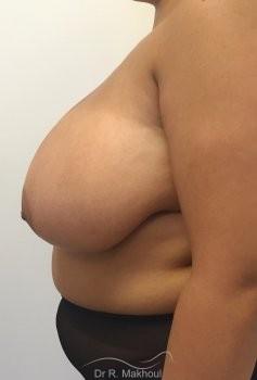 Hypertrophie mammaire vue de profil avant