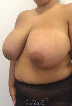 Hypertrophie mammaire vue de quart avant