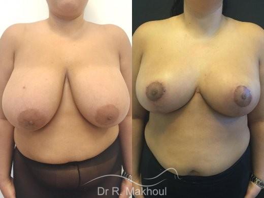 Hypertrophie mammaire vue de face duo
