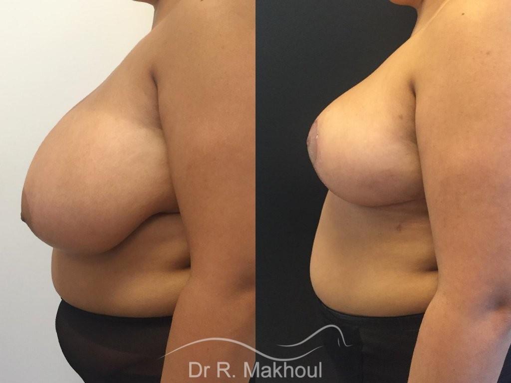 Hypertrophie mammaire vue de profil duo