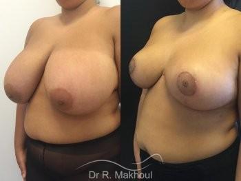 Hypertrophie mammaire vue de quart duo