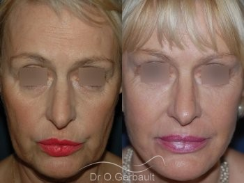 Lifting bas du visage vue de face duo