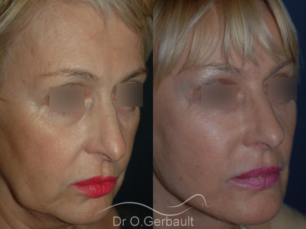 Lifting bas du visage vue de quart duo
