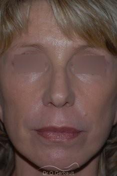 Lifting cervico facial vue de face apres