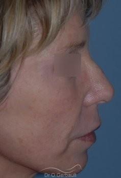 Lifting cervico facial vue de profil apres