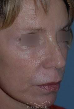 Lifting cervico facial vue de quart apres