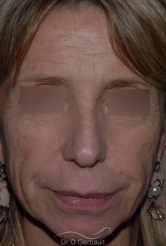 Lifting cervico facial vue de face avant