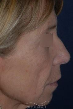 Lifting cervico facial vue de profil avant