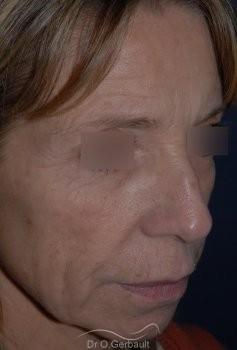 Lifting cervico facial vue de quart avant