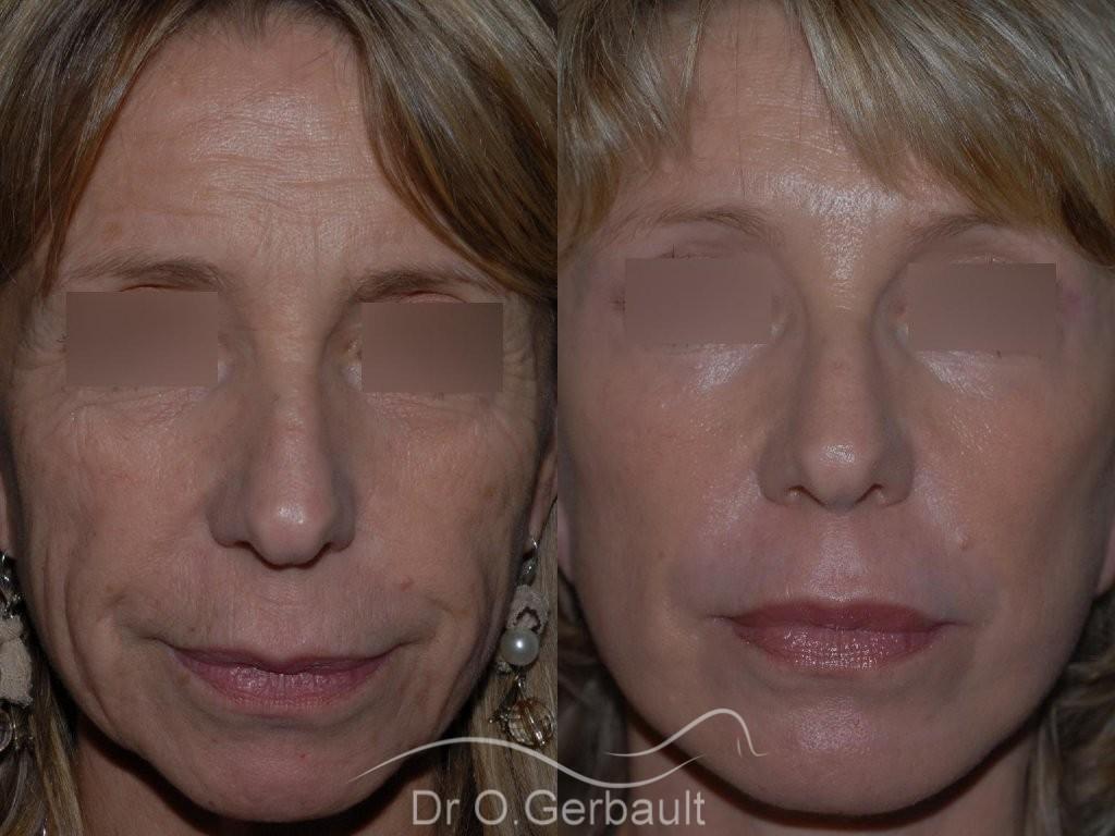 Lifting cervico facial vue de face duo