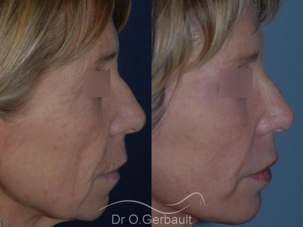 Lifting cervico facial vue de profil duo