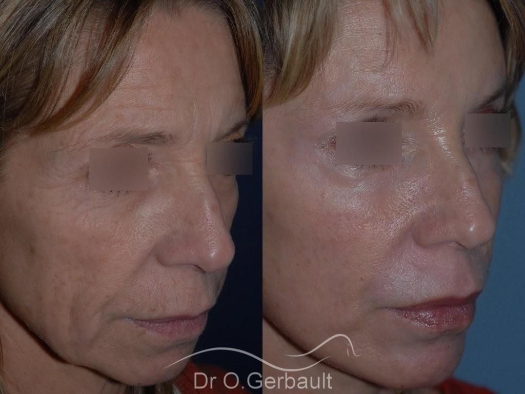 Lifting cervico facial vue de quart duo