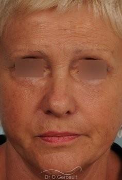 Lifting cervico-facial vue de face apres