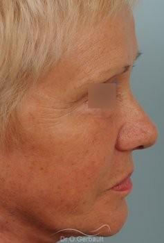 Lifting cervico-facial vue de profil apres