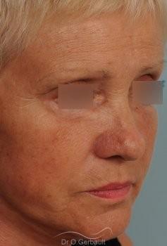 Lifting cervico-facial vue de quart apres
