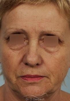 Lifting cervico-facial vue de face avant