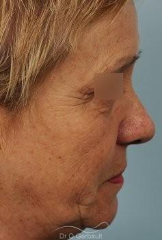 Lifting cervico-facial vue de profil avant