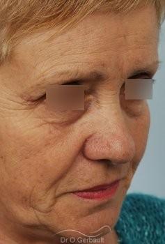 Lifting cervico-facial vue de quart avant