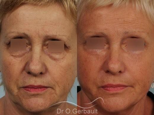 Lifting cervico-facial vue de face duo