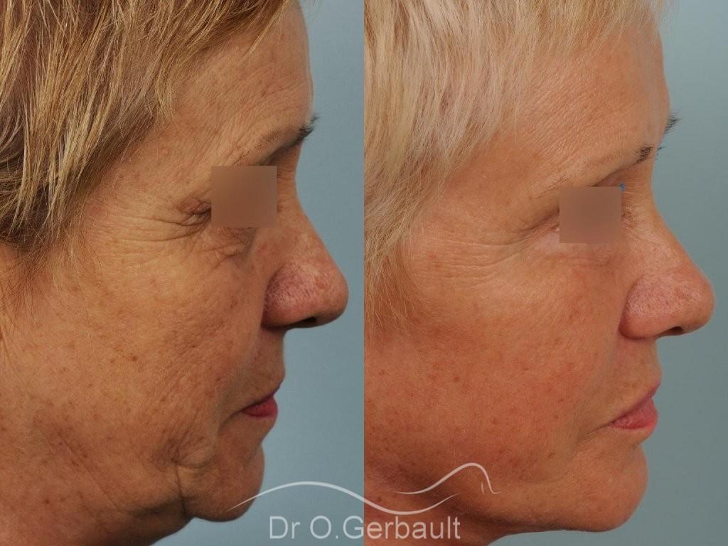 Lifting cervico-facial vue de profil duo