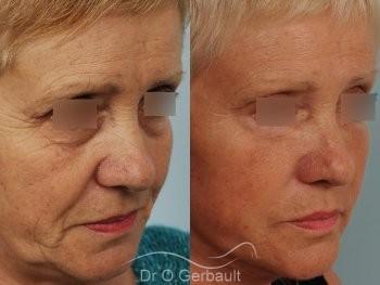 Lifting cervico-facial vue de quart duo