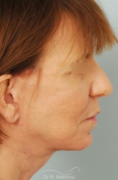 Lifting cervicofacial vue de profil apres