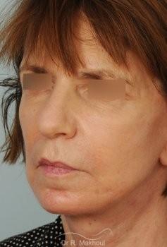 Lifting cervicofacial vue de quart apres