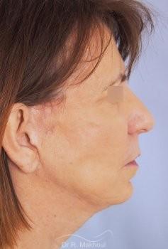 Lifting cervicofacial vue de profil avant