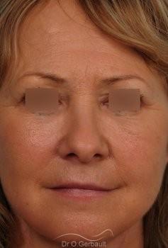 Lifting complet visage vue de face apres