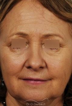 Lifting complet visage vue de face avant