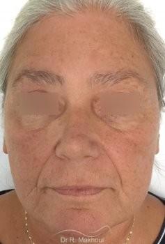Lifting Ovale du visage vue de face avant