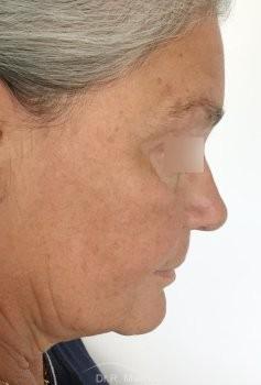 Lifting Ovale du visage vue de profil avant