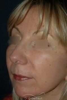 Lifting ovale visage vue de quart apres