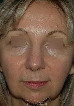 Lifting ovale visage vue de face avant