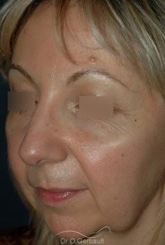 Lifting ovale visage vue de quart avant