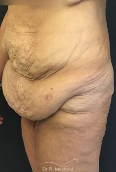 Lipoaspiration et BodyLift vue de profil avant