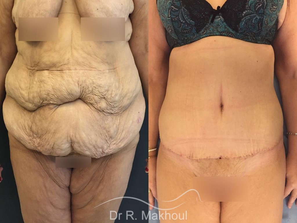 Lipoaspiration et BodyLift vue de face duo