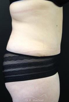 Lipoaspiration et Plastie abdominale vue de face apres