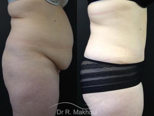 Lipoaspiration et Plastie abdominale vue de face duo