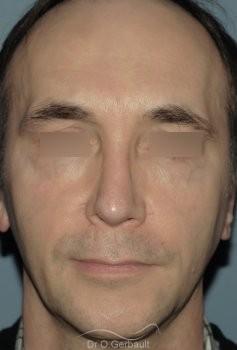 Lipofilling visage vue de face apres