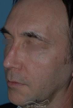 Lipofilling visage vue de quart apres