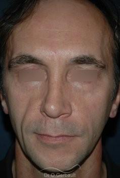 Lipofilling visage vue de face avant