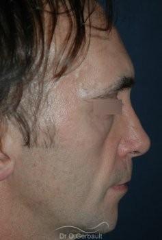 Lipofilling visage vue de profil avant
