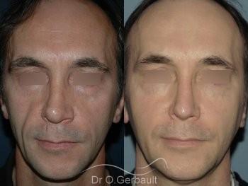 Lipofilling visage vue de face duo