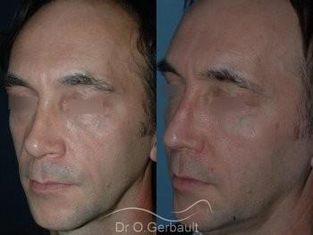 Lipofilling visage vue de quart duo