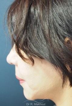 Minilifting de l'ovale du visage vue de profil apres