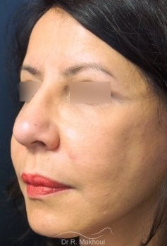 Minilifting de l'ovale du visage vue de quart apres