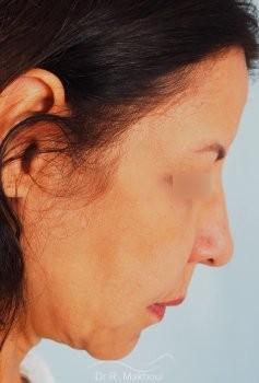 Minilifting de l'ovale du visage vue de profil avant
